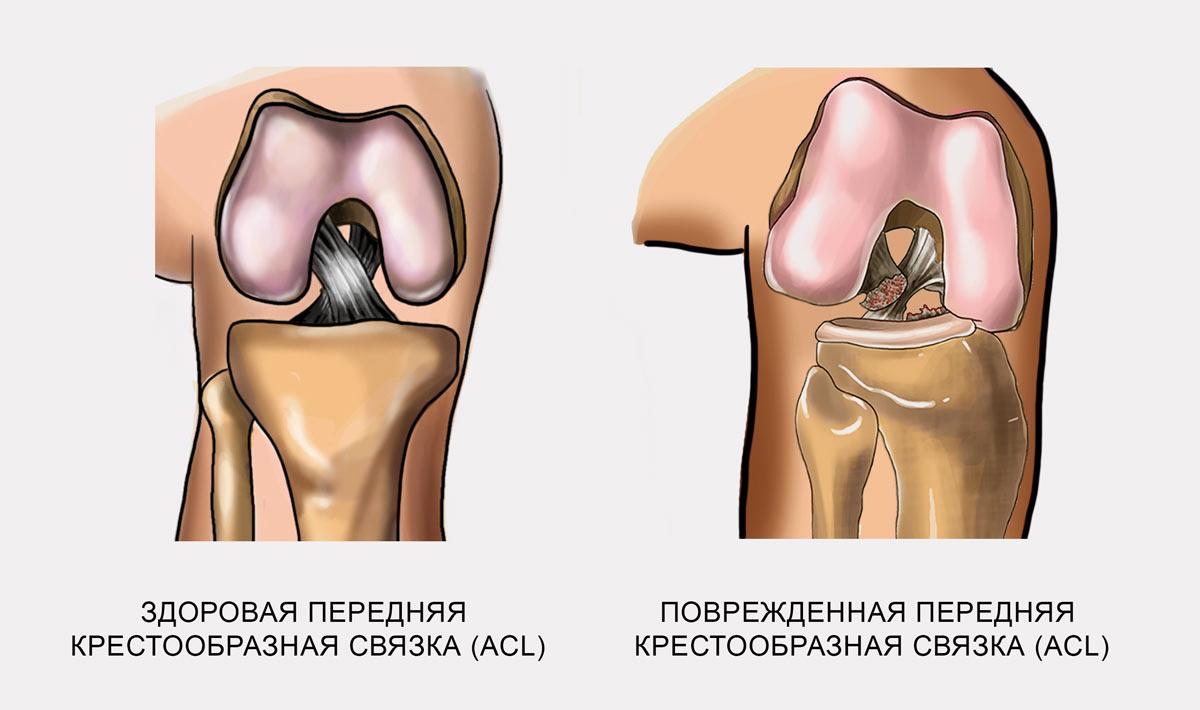 Заболевание коленного сустава у спортсменов грудно ключичный сустав