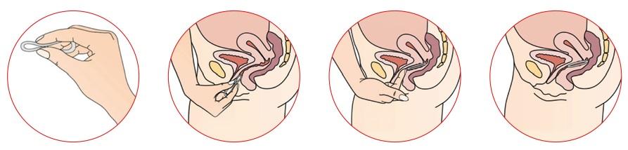 kto-polzovalsya-vaginalnimi-svechami-vitekayut